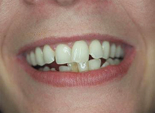 6 Month Braces Smile of the Month - Before