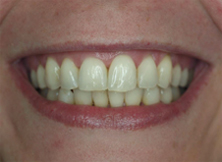 6 Month Braces Smile of the Month - After
