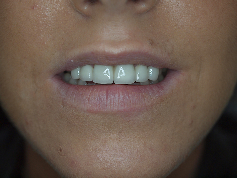 Dental Treatment - After